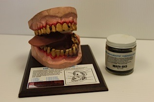 Model of teeth, tongue, and oral cavity shows the effects of using smokeless tobacco